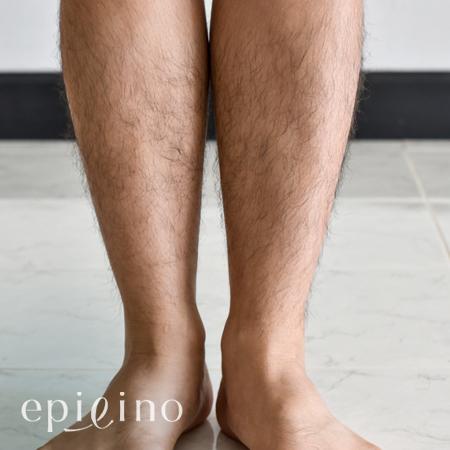 男のすね毛を永久脱毛するといくら?メンズの足脱毛の料金まとめ