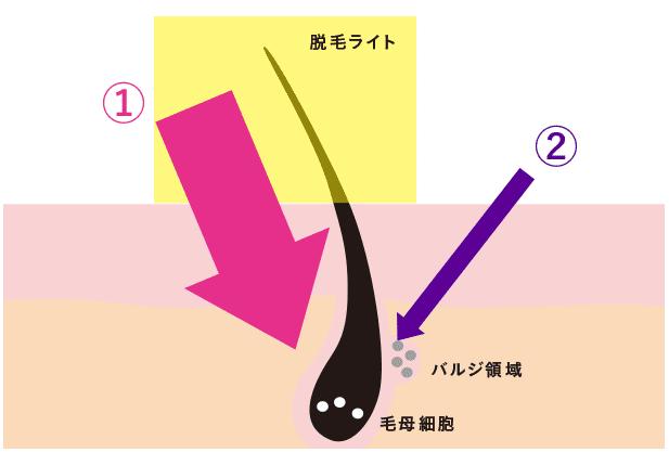 キレイモの脱毛方式
