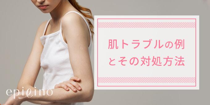 肌トラブルの例とその対処方法